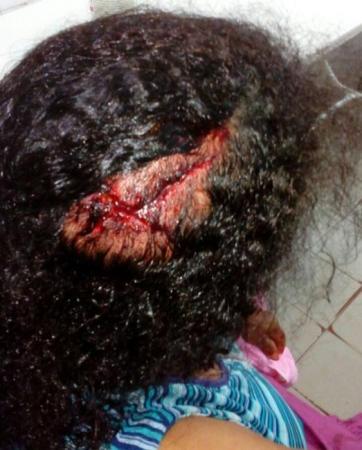 Idosa é agredida a golpes de faca em Agricolândia