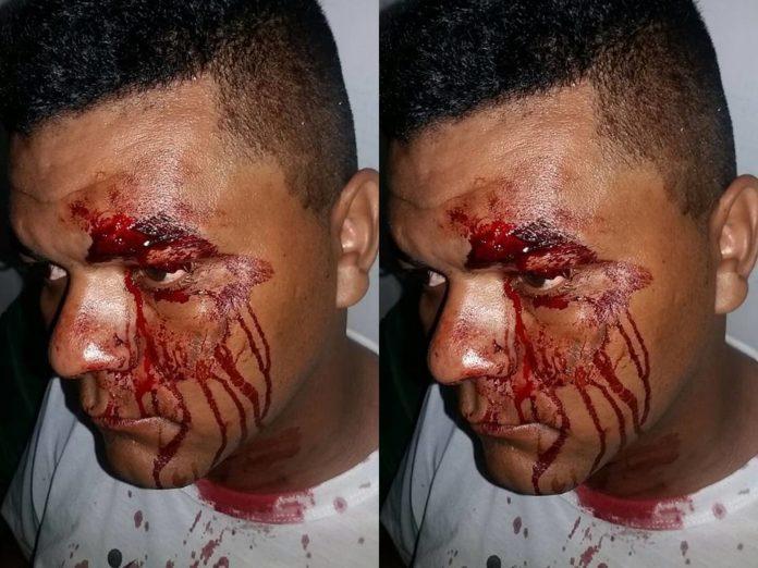 Radialista sofre tentativa de homicídio ao deixar local de trabalho