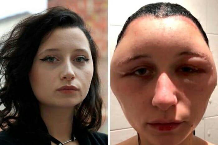 Jovem tem reação alérgica com tinta e cabeça dobra de tamanho